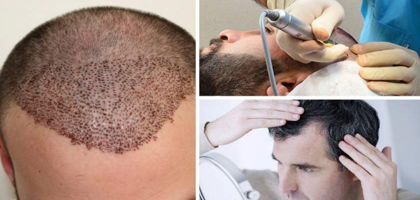 Saç Ektiren Kişilerin Yorumları