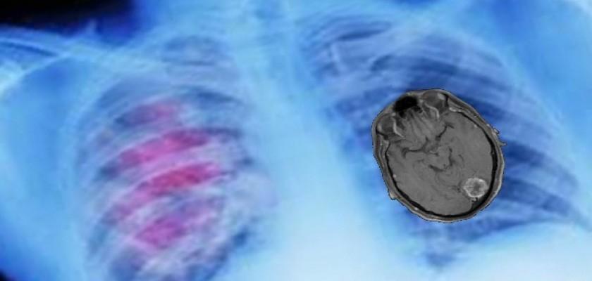 Akciğer Kanserinde Beyin Metastazı Neden Olur?