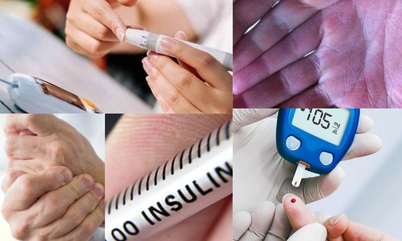 Diyabet Hastalığının Belirtileri Nelerdir?