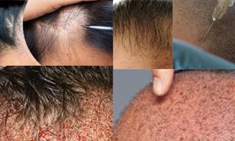 İmplant Capillaire-Saç Ekimi